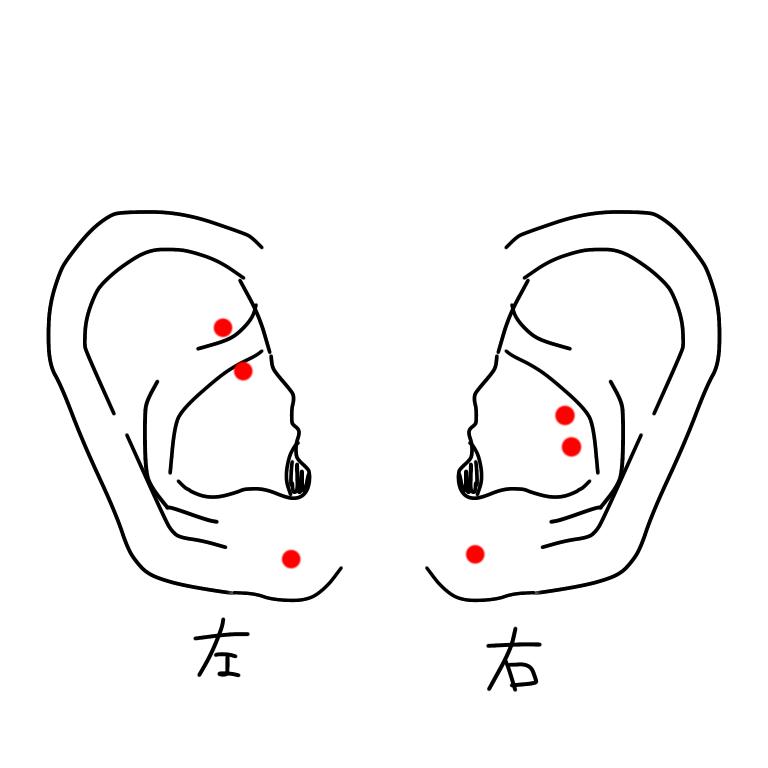 ピアスの位置について相談です。 現在、 左→ロック、ロブ1つ 右→インナーコンク2連、ロブ1つ 空いており、左のインナーコンクは3連にする予定なのですが 左耳が少し寂しいように感じます。 どこかおすすめの位置などありましたら教えて頂けると幸いです。 ※スナッグ、アンチトラガスは両耳とも耳の形状的にピアッシングが不可能なので、それ以外でお願い致しますm(_ _)m
