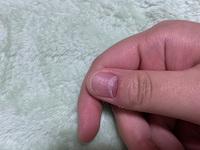 親指の爪の根元が少し剥がれてしまいました。 汚い爪で申し訳ないです。写真のように剥がれました。これは時間が経てば治るものなのでしょうか…?それとも病院に行った方がいいのでしょうか…?