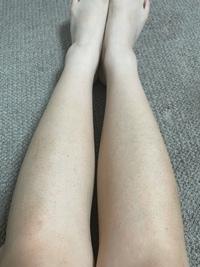 足の毛穴が汚くて悩んでいます。 処理したあと保湿などはしっかりしているのですが、どうしても跡が残ってしまいます。 何か対処法などはありますでしょうか? また脱毛をすれば治るのでしょうか?