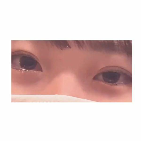 埋没済です。このように目の開き方に左右差が出てしまっているのですがどのような施術をすれば治すことが出来るでしょうか? 写真から見て右目の方が開きが悪いです。 埋没する際、先生にも生まれつき目の開き方に左右差があるから若干両目で幅が変わるかもと言われています。