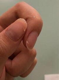 爪がこんな感じですぐ割れてきてしまいます この後どうすればいいですか?