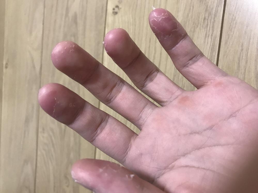 楽器の弦を触って皮膚が何回か生え変わったりしていたら、いつの間にか写真の通り、指先の皮がお風呂に入る度、 ボロボロとなってしまうのですが…これは水虫なのでしょうか?