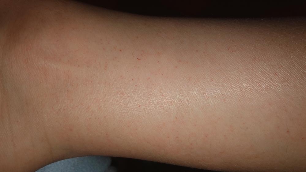 痒くはないんですけど、足に赤い斑点のようなものがいつの間にか出てました。 これはなんでしょうか…? 足の甲くらいから、足首の少し上位まであります。 左右両方です。 調べてもあまり同じようなのが出...