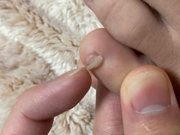 爪に関しての質問です! めっちゃ焦ってます! 1週間前ぐらいから爪に横向きの亀裂が入っていたのですが、 今日お風呂上がりに爪を見ると亀裂の部分から上が剥がれてしまっていました。ふやけて柔らかくな...