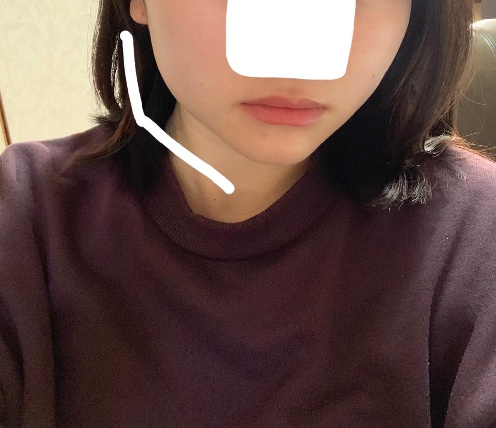 輪郭の整形についてです。 耳下から顎にかけてのラインが真っ直ぐになりたいです。 丸顔というか四角い輪郭がコンプレックスで、 この角張は、エラボトックスでマシになりますか?骨切りしないと無理ですか?以前、ハイフのリニア3回当ててます。