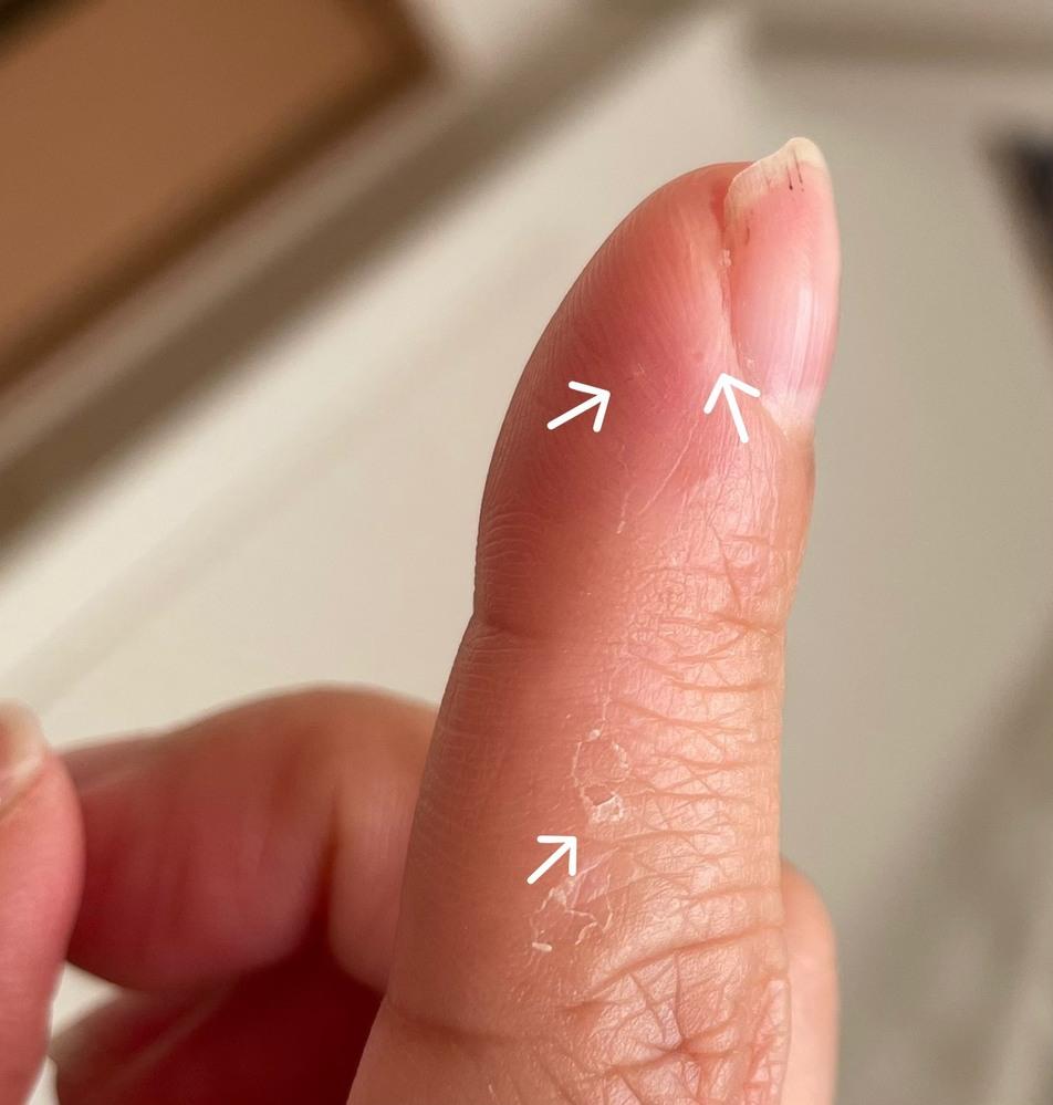 お見苦しい写真すみません。 手の指の第一関節までくらいのあたり(手のひらではなく手の甲側。爪の下あたり。)に水疱ができています。10本ともです。指によっては第二関節あたりまで。 痒みはあったりな...