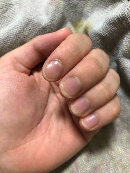 ネイルケアについて 小さい頃から爪を噛む癖が酷く、常に爪がボロボロだったのですが、頑張って伸ばすようにしてから2ヶ月くらい経ちました。ピンクの部分を伸ばしたくてネイルオイルやケアコートなどをつけて保湿、補強しているのですが、なかなか伸びません。白いところが長すぎると危ないので、ちょくちょく切っているのですが、そうすると爪が剥がれてまたピンクの部分が減ってしまいます。やっぱり限界まで伸ばしてピ...