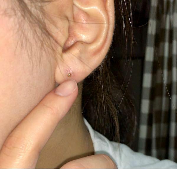 6日前にピアスを開けたんですけど昨日から耳が腫れてきてピアスが埋まりそうです。 シャフトってした方がいいんですか?