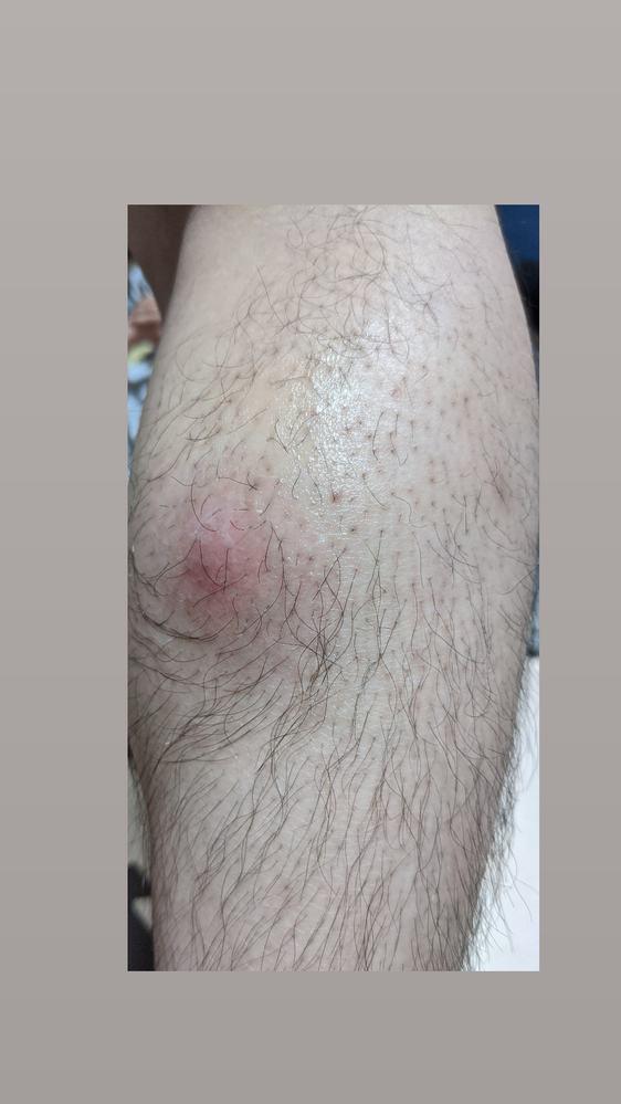 2日前ぐらいからふくらはぎに虫刺され?のような腫れができ凄く痛いのですがこれはなんでしょうか… 詳しい方教えていただけたら幸いです
