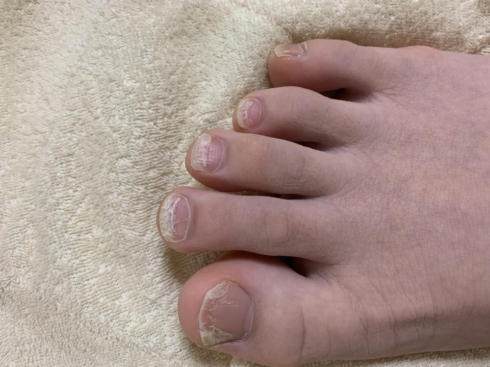 お目汚し失礼します、すみません 女子高校生です これ私の足の爪です、ボロボロですよね… 弱いんでしょうか、それとも病気なんでしょうか?? どちらにせよ綺麗にしたいです。色々な解決策教えて欲しいです