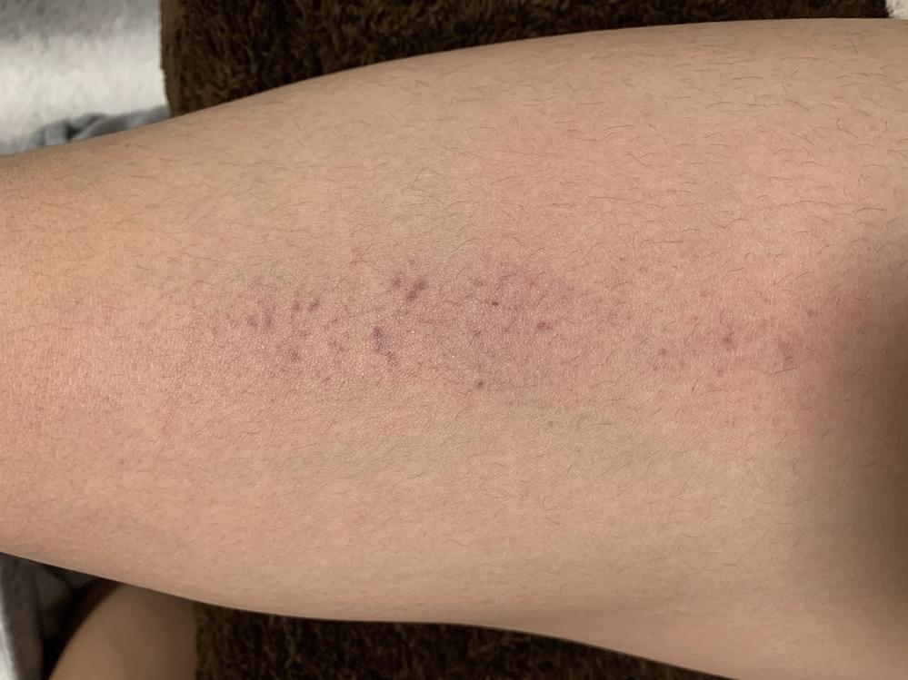 太ももと腕の内側に斑点があるんですけど、これって白血病とかですかね? 後、鼻血が何もしてないのに出て、すぐ止まります。