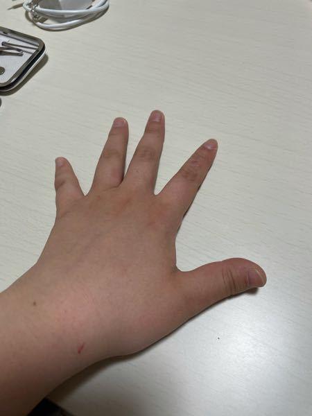 この指どう思いますか? また、こんなに太いのは、指ぽきが原因なんでしょうか? 何か細くなる方法ありますか?