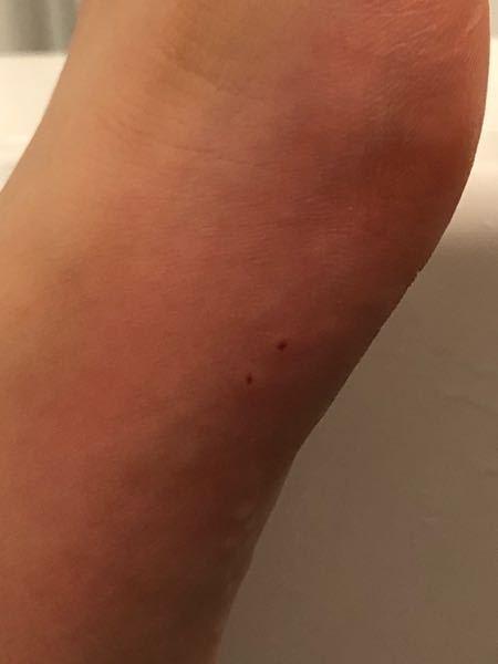 よく足や腕にこういう穴が空いてるようなのができ、とても痒いですこれは一体何なのでしょうか?