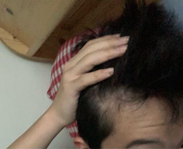 高校生です。早急にお願いします。 この髪型は禿げてきているでしょうか??ほんとに将来が不安になってきました。最近ここら辺の髪が柔らかいし、どうしたらいいか分かりません。具体的な対処法もお願いしま...