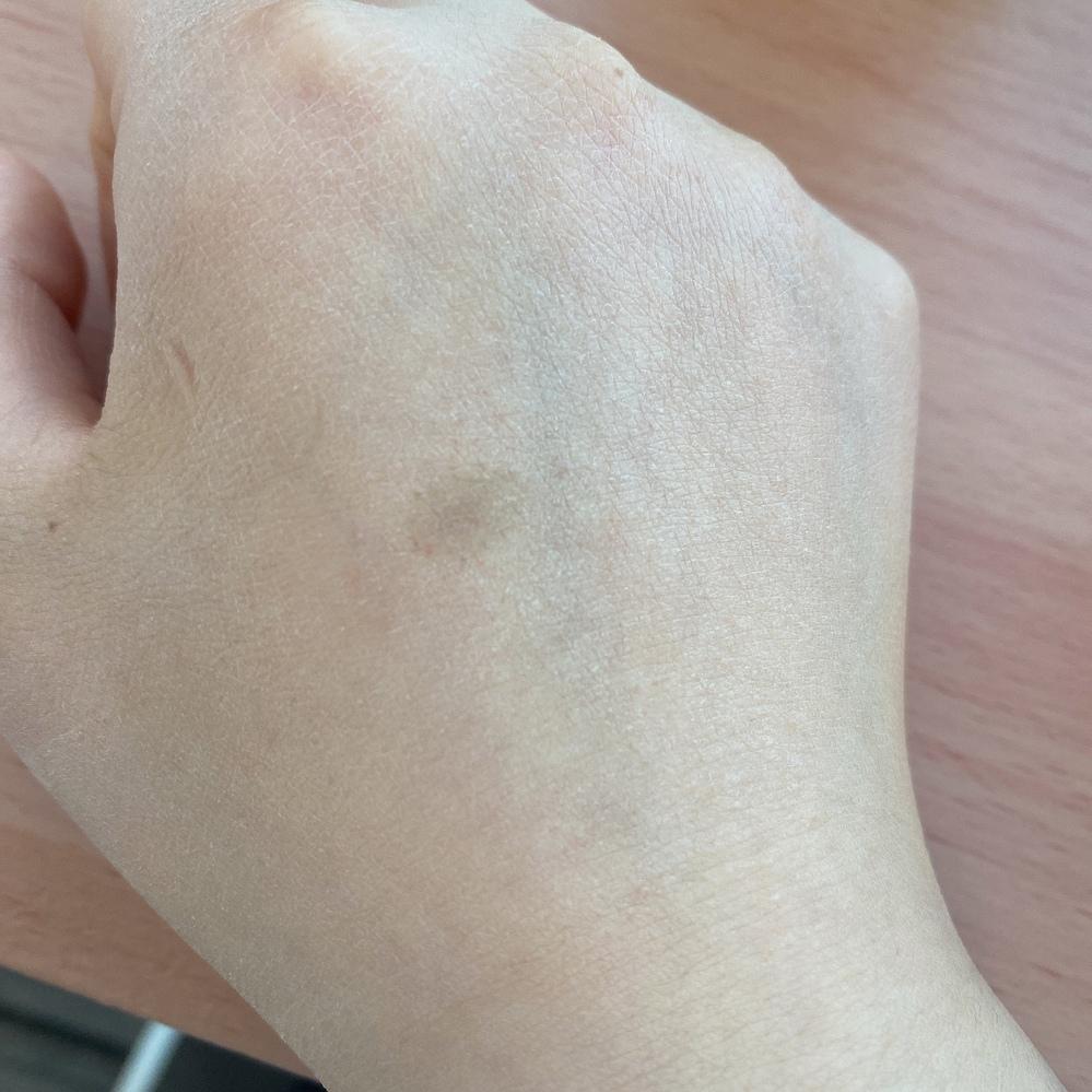 手の甲にシミのようなものが出来てしまいました。 これはシミですかね? 手の甲の乾燥に関しては 皮膚科で薬をもらってケアしてます… 治すとしたらレーザーとかしかないですか?