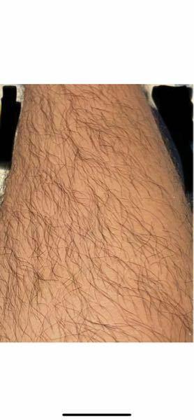 このすね毛と肌でも家庭用脱毛器で脱毛できますか?