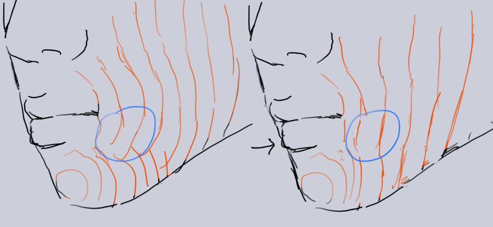 歯列矯正をする事で下顎の歯を後ろに下げながら、青丸部分の口輪筋下側で端の膨らみを凹ます事は可能なんでしょうか。 それか歯列矯正とは違うアプローチで可能なのでしょうか。