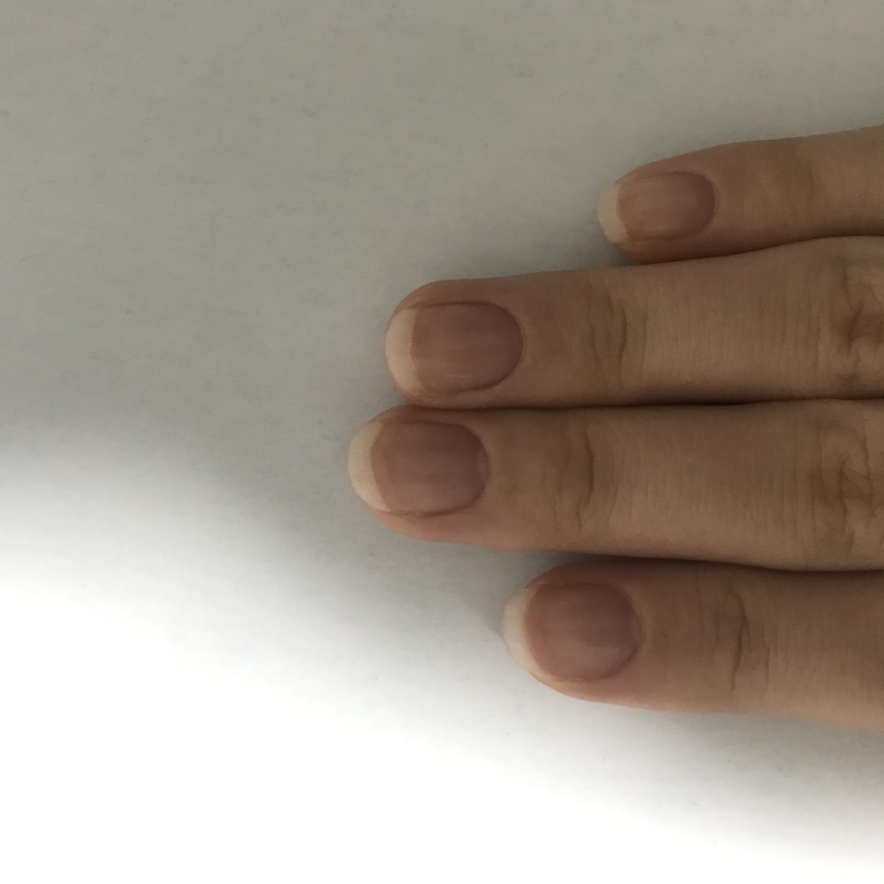 爪についてです。 私の学校では実習前に身だしなみの確認があります。 人と関わる実習の為、爪の長さに気をつけなければいけないことは重々承知なのですが、 正直、爪の形は人それぞれ違うのに「爪の白い...