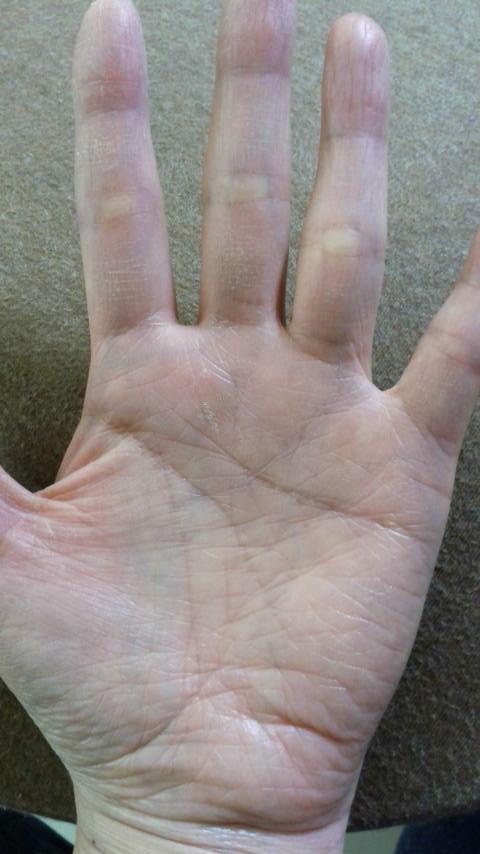 手相占いお願いします。 手の洗いすぎで荒れていますがお願いします。