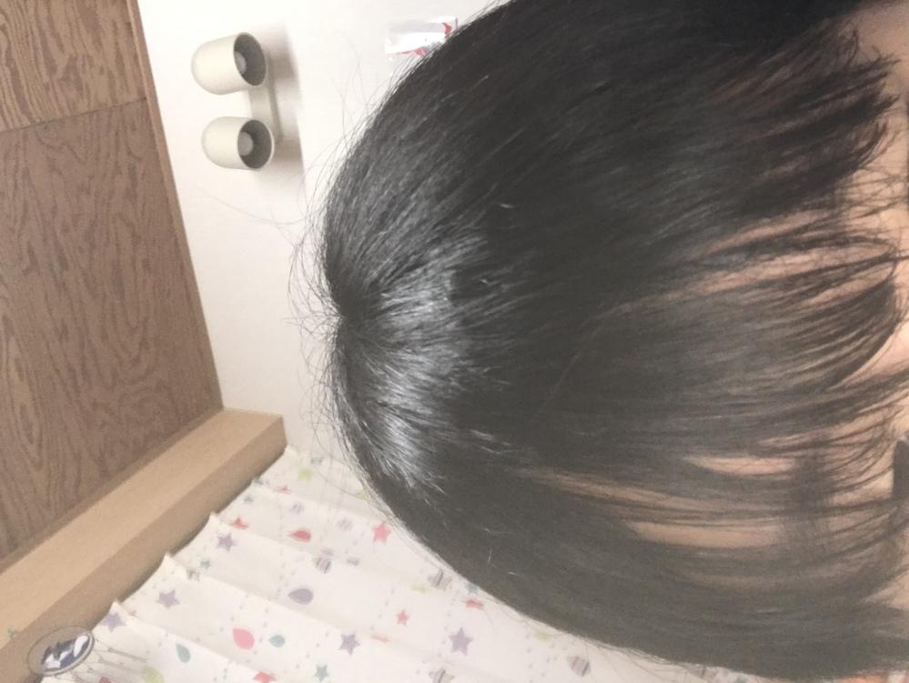 癖っ毛で前髪がこんな感じになってしまうのですがこの前髪で歩いてたらやばいですか?