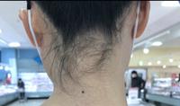 今日理容室でうなじの処理をしてもらったのですが、この写真がしてもらった後です。この生えてる毛は剃らないのが普通なのですか? 理容師さんには大事な後れ毛で剃ったらチクチクするからここは剃らないの方がいいよって言われました。
