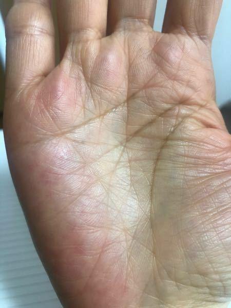 1年前、ネットの鑑定で薬指の下にスターができていて、小指の下にも伝えができかかっていると言われました。小指の下のスターがはっきりしてきたように思います。また生命線から上がる向上線も昔は1本だったのですが 日本くっきりと人差し指まで突き抜けています。運命線も中指の下が2本のようになっています。今年で51歳です。これまでは健康害したり苦労の多い人生でした。手が赤いので健康に注意とも言われました。...