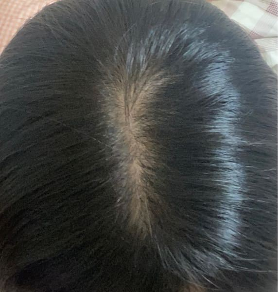 片側だけ髪の量が少ないです。改善方法などありますでしょうか?