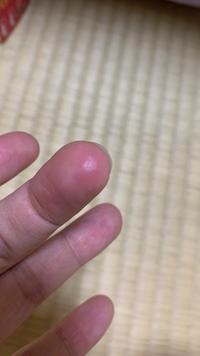 トイレマジックリン 強力クレンザーについて 先日、トイレの洗面台をトイレマジックリン強力クレンザーを使って掃除したのですが、その後から左手中指の指先に1cmほどの火傷?のような傷ができています。(画像)  トイレマジックリンを使う際に両手に手袋はしておらずに素手で掃除していたのですが、ピンポイントで左手中指の指先だけに傷ができていて疑問に思っています。傷に触るとそこだけ触覚?触った感覚が...
