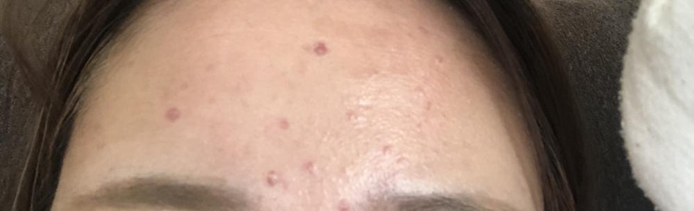 おでこのにきびが、皮膚科の薬もきかず化粧を控えても何をしても消えません。なにか赤ニキビに効く薬ないですかね?