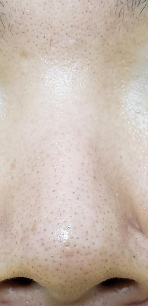 鼻や毛穴が汚すぎます 朝は水洗顔で夜はセラミド入りの洗顔を泡立てて顔を洗っています。 クレンジングはジェルタイプです。 お風呂上がりにはすぐにセラミド入りの化粧水と乳液をつけて保湿しています。 ...