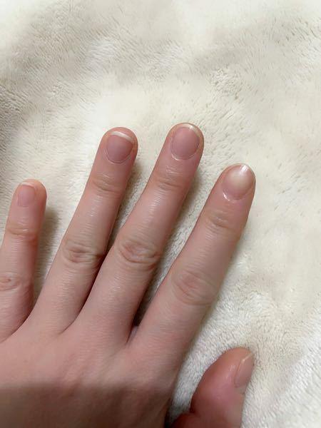 20代前半です。今パティシエをしているので水を使う仕事が多くなかなか綺麗に爪が伸びません。 また、元々なのか爪が小さく横幅が太く子供のような手です。 ネイルに強い憧れがあり、転職したらネイルをしたいと思っているのですがこんな手じゃ綺麗にならないと思って落ち込んでいます… ピンクの部分が伸びることは不可能なのでしょうか?