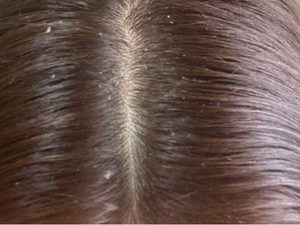 髪の毛の色落ちが嫌で全く外に出ない日は頭を洗わなかったりしていたら、頭皮をかくとこのように白い皮(?)のようなものが出てきて困っています。これはフケですか??改善方法教えてください( ; ; )