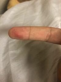 野球でピッチャーをやっているんですが写真のように投げると、人差し指の指紋が徐々に削れて行って練習の後には皮がぽろぽろになります。 なにか対処法はありますか?この写真は練習の3日後なので回復しかけてます。
