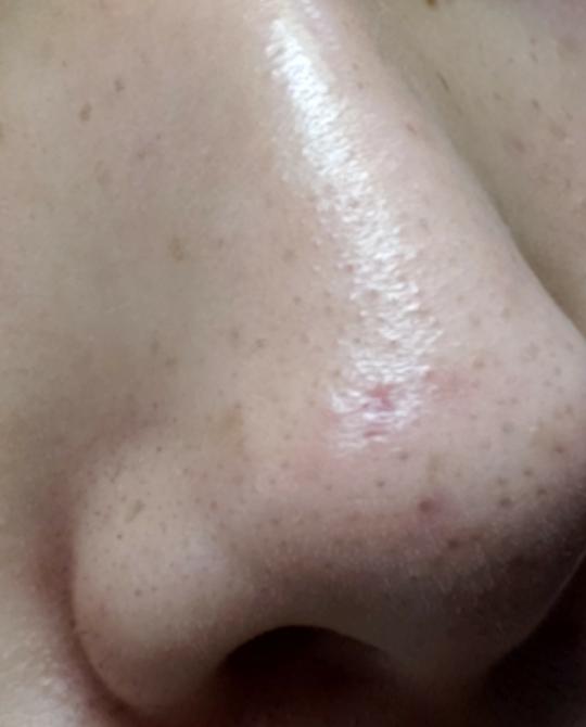 17歳です。鼻に出来たニキビの跡がとても目立つ様に感じていてしんどいのですが、考えすぎでしょうか? もし、目立つようでしたら良い対処法などを教えていただけませんか?