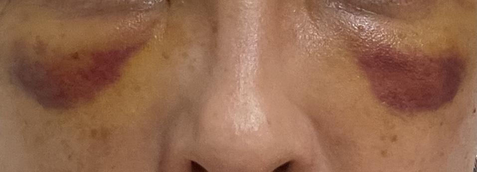 6日前に湘南で目の下の脱脂とナノリッチ、コンデンスリッチを目の下ゴルゴ法令線にいれましたが、当日から腫れと内出血がひどいです。 写真のように内出血の周りは少し黄色になってきましたが、赤紫の部分の面積は変わらず治りません。こんなに内出血がひどく続く事はありますでしょうか?病院を受診しようか迷ってます。。 頬も硬くなり突っ張っています。顔がパンパンで笑顔が怖いです。まだ6日だとは思っていますが段...