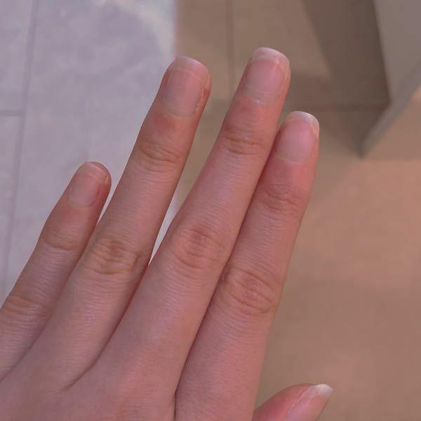 初めてネイルサロンでジェルネイルをやって貰おうと思うのですが、この爪だと短すぎますか?または小さすぎますか?初めてなので何も分からず、私の爪ではよくSNSで見る様な綺麗な爪になるとは思えないのですが、ち ゃんとネイリストさんに整えて貰えば綺麗になるのでしょうか?