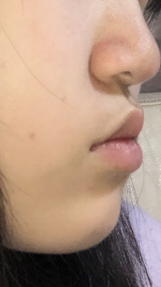 顔評価お願いします 鼻と口にコンプレックスがあります。 この鼻と口は残念なものですか? また口ゴボ?ですか?
