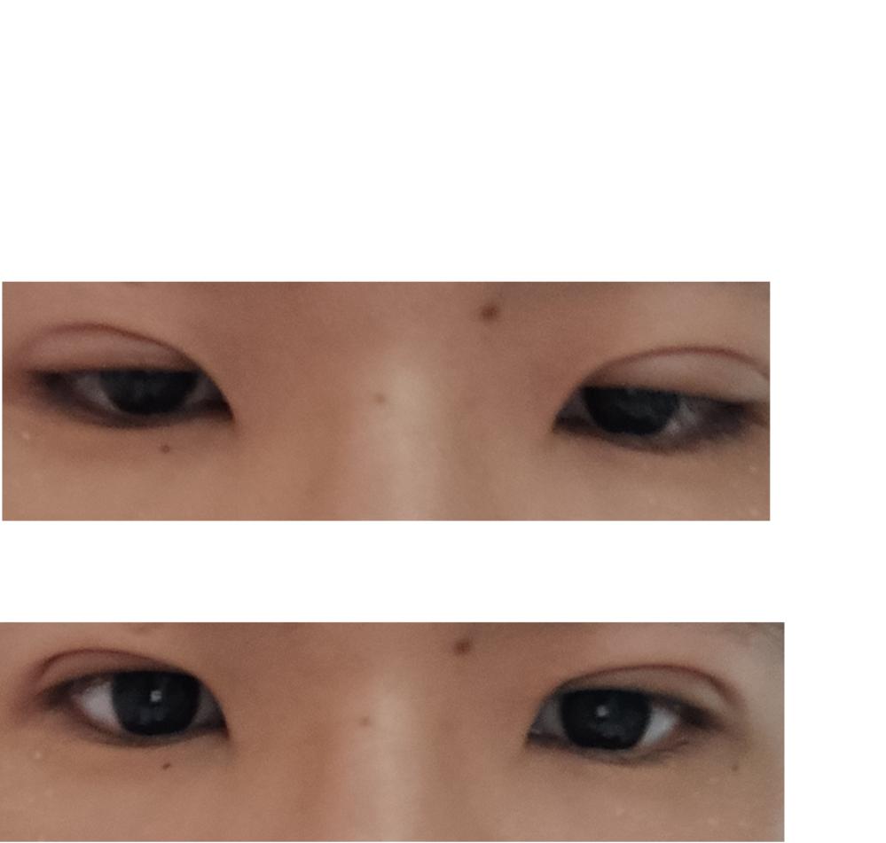 生まれつき細目だったのがコンプレックスでやっと念願の埋没を行いました。 しかし埋没しても目の開きが変わらなかったので不思議に思い、埋没の手術を行った美容外科の経過診察で医師に「多分だけど眼瞼下垂...