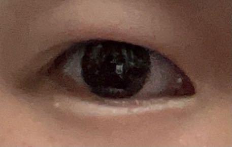 汚い画像失礼します。 この目は蒙古襞がどのくらいありますか? 回答よろしくお願い致します。