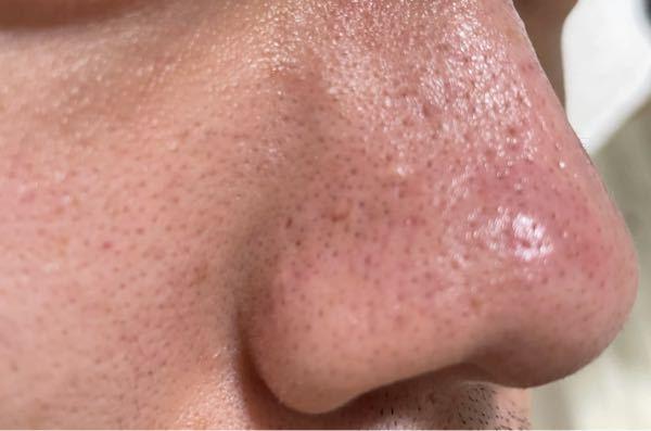 閲覧注意です。 3〜4年ほど前からいちご鼻(角栓)に悩んでいます。 ファンケルのマイルドクレンジングオイルを入浴後に塗ってマッサージしてみたり、無印のホホバオイルを使ってマッサージした後に洗顔をして化粧水や乳液を使ったりしているんですが改善の様子がありません。 よくドラッグストアにある角栓用パックをたまに使ってもほとんど取れず一時的な変化もしません。 オイルが角栓の油と混ざって溶かすとか言われてますけど疑問に感じています。 どうすれば改善できるのでしょうか? また、セルフケア以外に皮膚科に相談してみても良いものなのでしょうか?皮膚科の方の専門外かもしれなくて聞けずにいます。