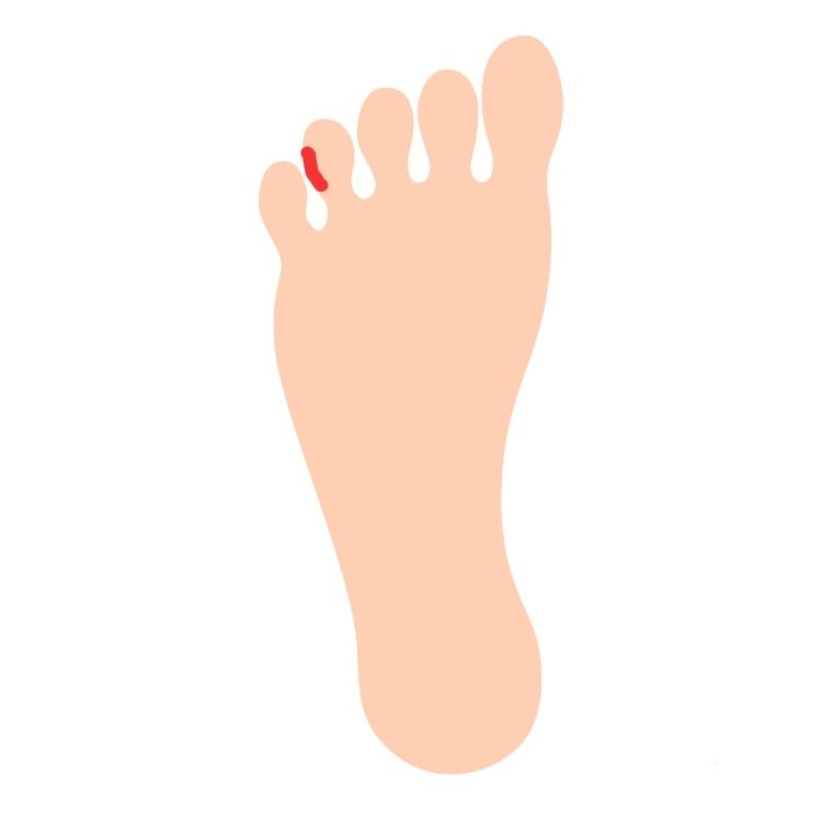 いつも履いているスニーカーと同じサイズの靴を買ったのですが、 ウォーキングをしていたら痛みがあり帰って見てみたら 画像の部分の左右の薬指の小指側が小指の爪が当たって両足共切れていて血が出ていま...