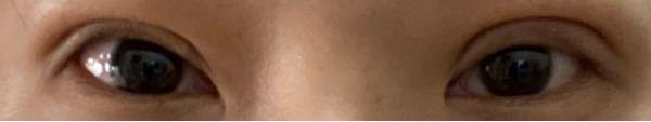 1週間前に眼瞼下垂をし、本日抜糸しました。 幅が違うのですが今後腫れが引いてくることはありますか?片側だけ幅が広く不安です。
