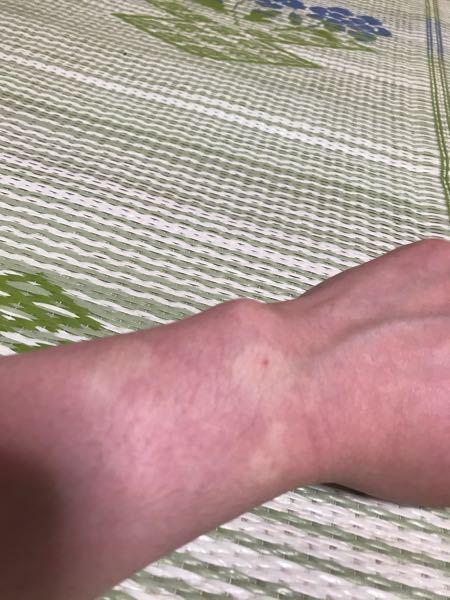 腕と手に湿疹が出来たので皮膚科でジフルプレデナートを処方してもらい、お風呂上がりに塗りました。 次の日に腕を見てみると薬を塗った場所が白くなってたので、ビックリしたのですが、このまま薬を塗り続け...