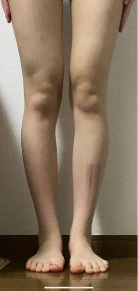身長159cmです。膝の位置低いほうですか?怪我の跡あるのすみませんm(_ _)m