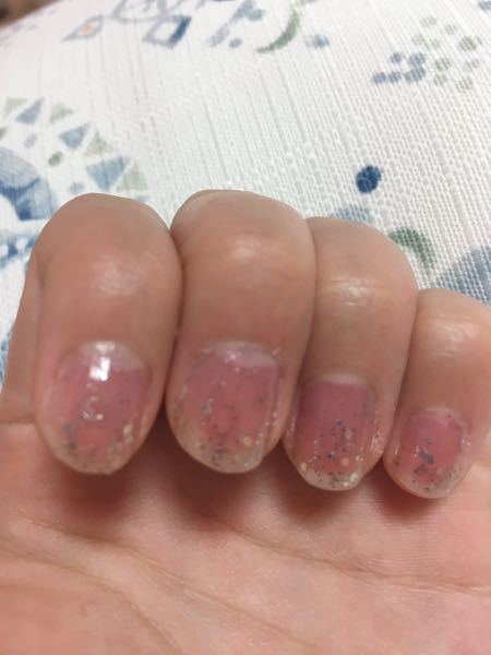 この爪ってさすがにダサいですか? 高一です。 爪汚くてすみません(o_ _)o