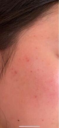 オイリー肌で毛穴とこめかみあたりのニキビと肌の赤みが気になります 詳しい方アドバイスお願いしたいですm(_ _)m