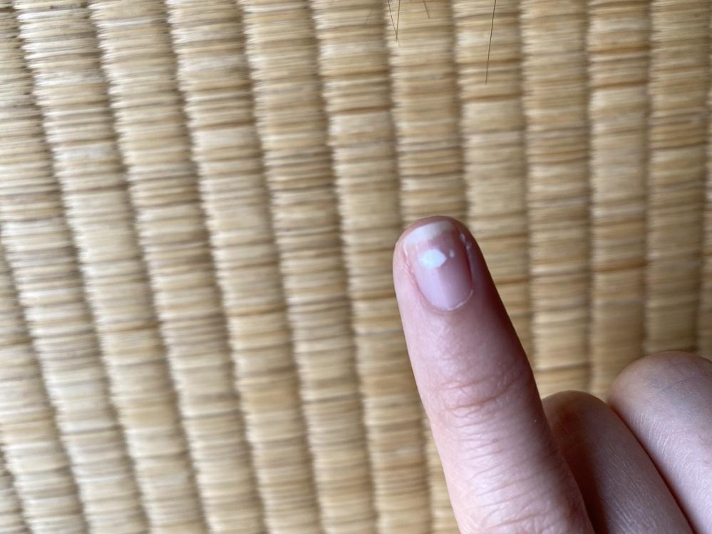 3月にサロンでジェルネイルをオフして、またジェルネイルをしてもらいました。 していく途中で爪に白いのがでてきました。 最後ネイルを終わった後にこの白いのってなんですか?と聞いたら稀にあります。栄養がいってないや乾燥したら出てくる方がいらっしゃいます。と言われましたが5月になった今でも一向に消えません。 どうやったら消えるのでしょうか。