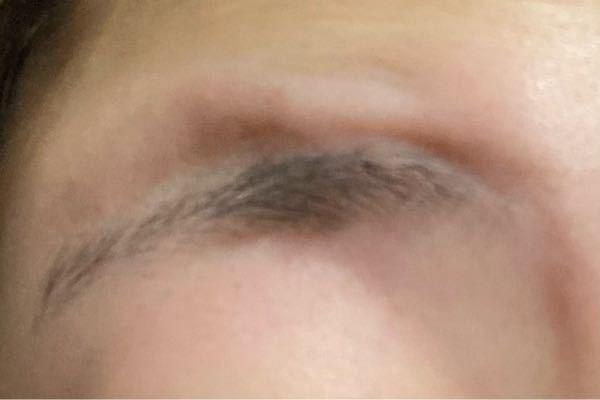 眉毛をあげるとボコってなるのですが、これって治りませんか? これ普通ですか?