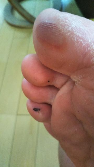剣道やってます。高校生です。 これってどう治療したらいいですか? 黒色のと親指のやつです。