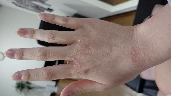 消毒のしすぎで手が酷く荒れてしまいました。 おすすめのハンドクリームはありませんか??